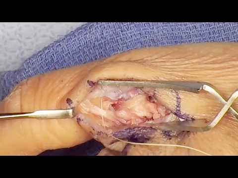 Thumb Ulnar Collateral Ligament Repair with Internal Brace Augmentation - Dr David Tuckman