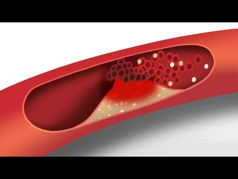 Cholesterol animation | Heart disease risk factors