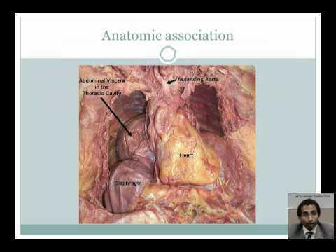Association Between Hiatal Hernia, GERD, and Atrial Fibrillation by Dr Suraj Kapa  www jafib com