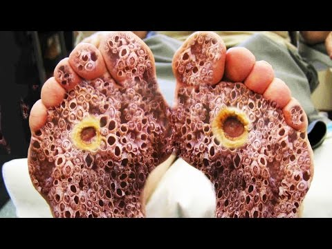 Trypophobia Skin Feet Fleas Eggs Youtube