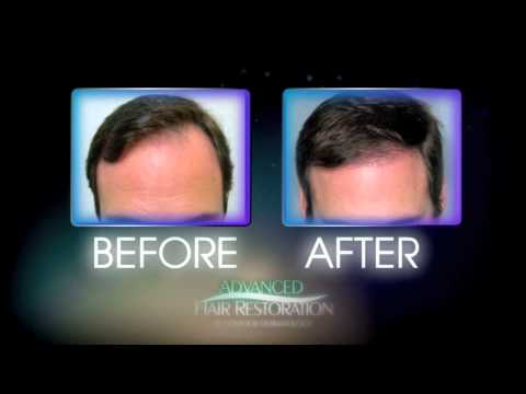 Hair Transplants | Santa Monica | Orange County