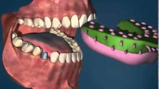 Зубные Коронки все типы - ДокторСтом, установка зубных коронок г. Краснодар(Зубные коронки все типы - ДокторСтом, установка зубных коронок г. Краснодар, http://www.doctorstom.ru/o-klinike/nashi-uslugi/protezirov..., 2014-11-19T14:05:52.000Z)