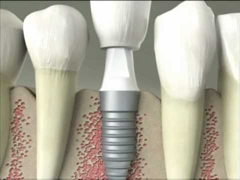 What Is a dental implant Delray Beach Dentist