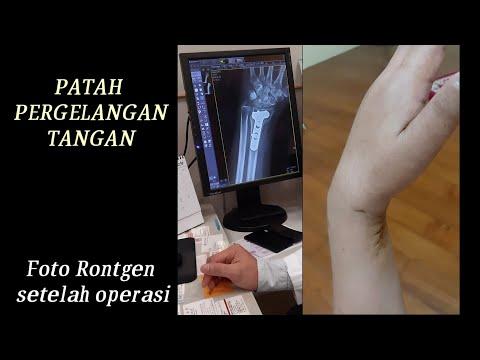 Mungkin kalian pernah mendengar mitos lutut kopong. Banyak juga yang beranggapan bahwa lutut kopong .