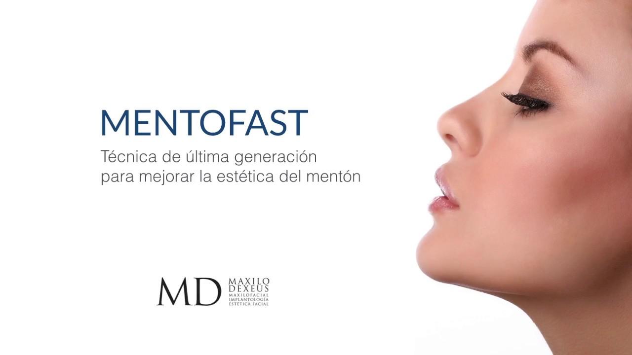 DINA: Estetica facial aumento de menton