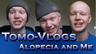 Me and Alopecia (Introduction To My Channel)
