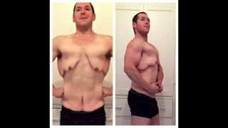 The Old Me Has Been Shed! (200 pound weight loss & skin removal surgery results)
