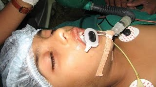 ADENOID REMOVAL CURE SNORING : Dr.K.O.Paulose FRCS