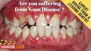 Now Trending - Save your Gums from Diseases – Explained by Dr. Adnan Saleem