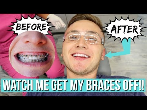 Watch Me Get My Braces Off Satisfying Youtube