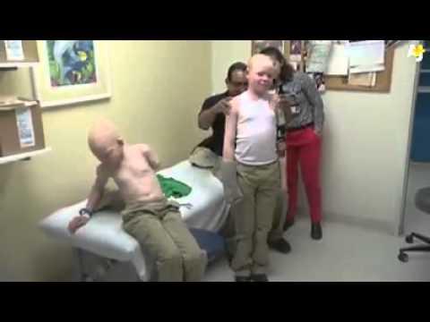 #Africa - Ritual Killings Albinos - Survivors - #Tanzania