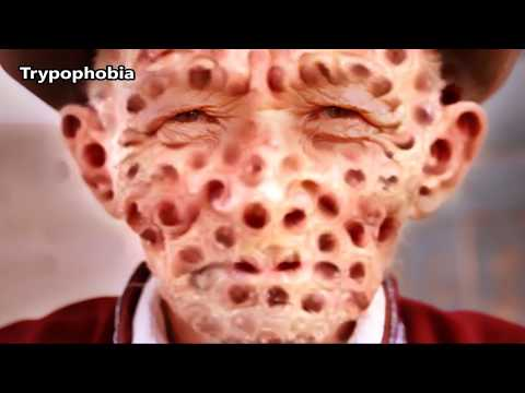 Monkey Zits!  Pimples, Popping, Epidermoid Cysts & Educational Medical Content