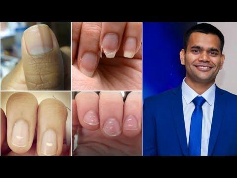 Что Ногти Расскажут О Вашем Здоровье   Диагноз По Ногтям   Доктор Вивек