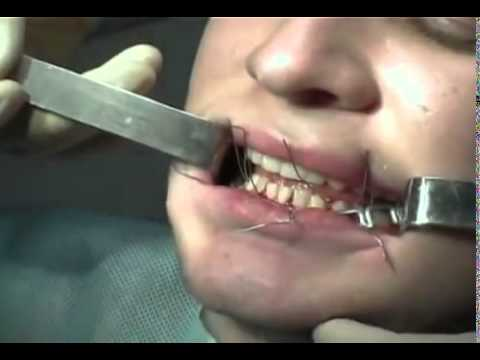 Перелом нижней челюсти: лечение и шинирование, симптомы