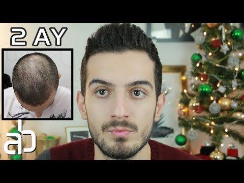 """Doktor """"Genetik Saç Dökülmesi Var !"""" dedi ; 2 Ayda Saçlarımı Nasıl İyileştirdim ? │ Aras Barlas"""