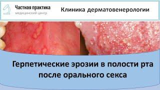 Фото Герпес в полости рта после орального секса