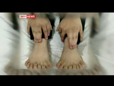 Doctors Remove Boy's 11 Extra Digits On His Hands And Feet