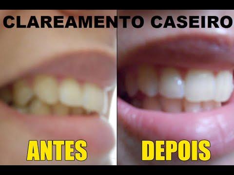 Clareamento Dental Caseiro Com Limao Resultado Surpreendente Na