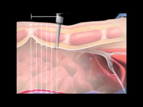 Surgical anatomy of supraumbilical port placement: Implications for laparoscopic surgery