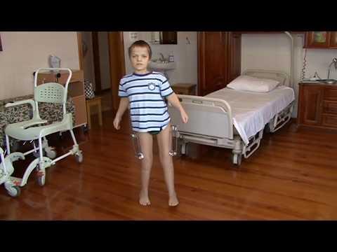 Achondroplasia Case Presentation