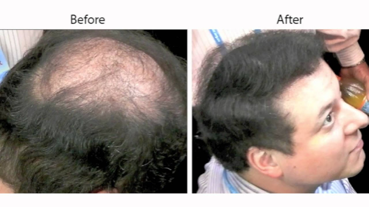Caboki Conceals Male Pattern Baldness Youtube