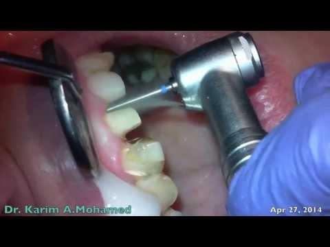 Dental Crown Preparation Sample Video Using Surgical Camera
