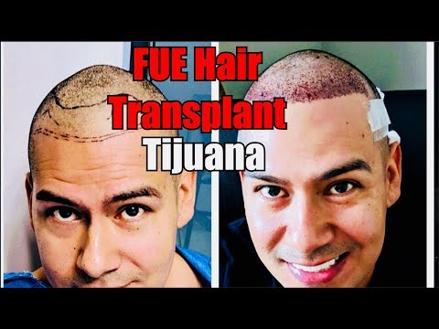 Best FUE Hair Transplant in Tijuana! Hair Medical Restoration: 6 Days Post Op 1600 Grafts