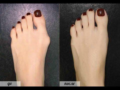 лекарство от подагры фулфлекс. профилактика косточек на ногах ...