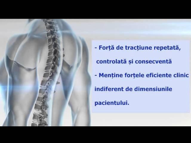 Hernia de disc: tot ce trebuie sa stii, de la simptome la tratament si moduri de prevenire
