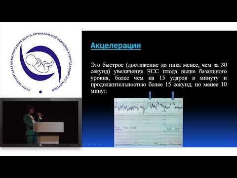 Алпаидзе Кристина Нугзарова. Критерии FIGO в оценке КТГ.