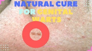 Best Natural cures for GENITAL WARTS