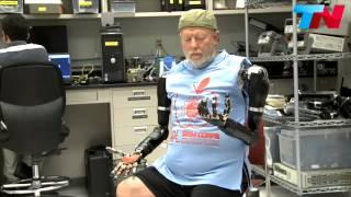 Un hombre controla sus brazos roboticos con el pensamiento! INCREIBLE