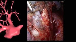 Segmentectomie pulmonaire S6 gauche par thoracoscopie
