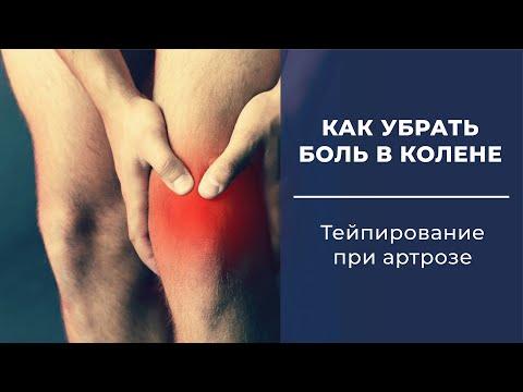 Тейпирование колена  Тейпирование при артрозе  Артроз колена  Как убрать боль в колене