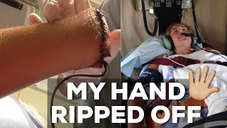 The Day I Almost Died // My Hand Ripped Off  *STORY TIME*