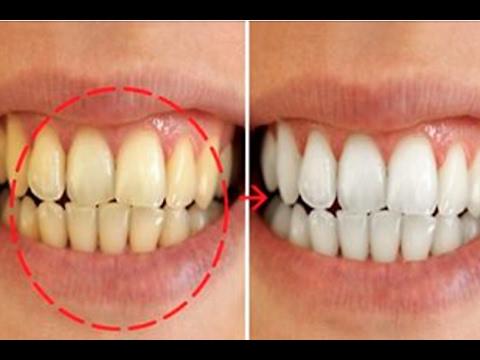 Como Clarear Os Dentes Em 2 Minutos O2 Receitas Youtube