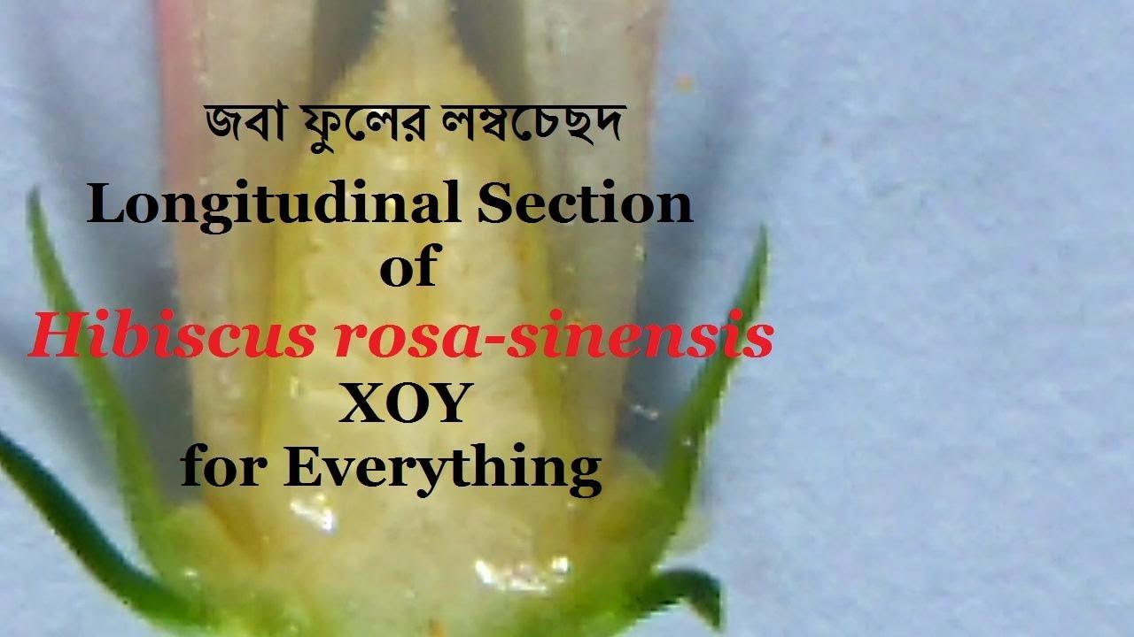 Longitudinal Section Of Hibiscus Rosa Sinensis জব ফলর