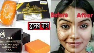 u.s.a beauty care face out Khadija begum