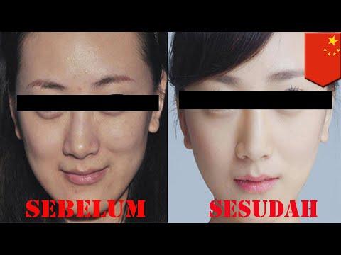 Wanita di Cina mengoperasi wajahnya untuk menghindari hutang - TomoNews