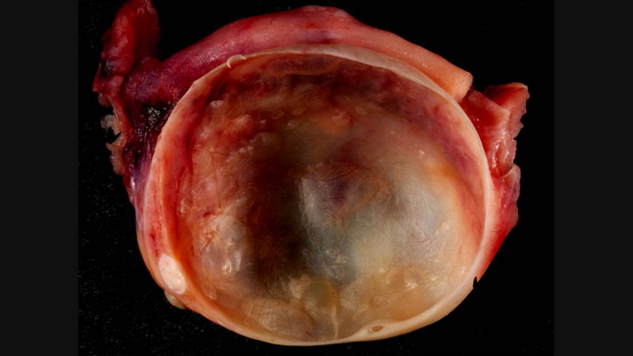 when an ovarian cyst ruptures what happens