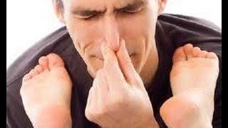 Как избавиться от запаха ног ! Чрезмерная потливость- метод 1 | #потливостьног #запахног #edblack