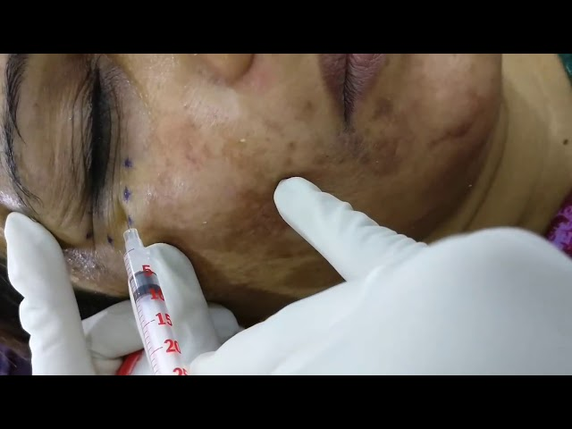 Antiwrinkle Injection - Dr.Venus