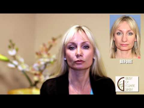 Orange County Tip Rhinoplasty - Dr Sadati Newport Beach