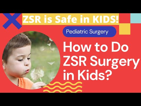 Paediatric ZSR Circumcision Surgery by Dr.Sachin Kuber MS Call +919823863926