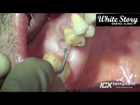 Какие импланты зубов лучше и как их правильно выбрать