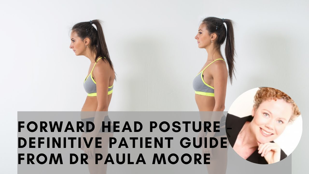 Forward Head Posture - Complete Patient Guide From Dr Paula Moore