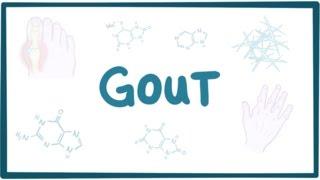 Gout - causes, symptoms, diagnosis, treatment, pathology