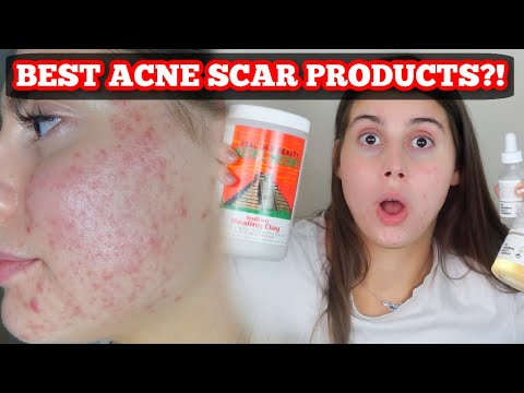 best-products-for-acne-scars-and-skin-healing!!