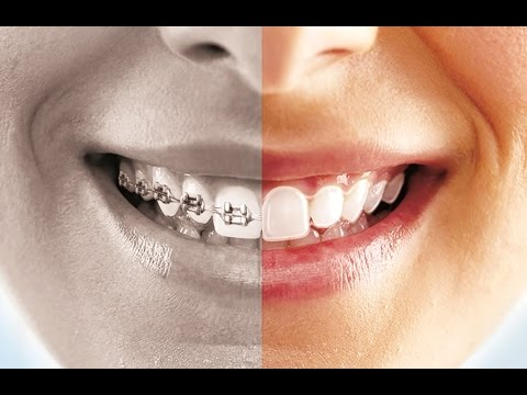 ClearPath Clear Aligners