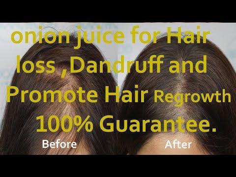 Onion Juice & Olive Oil for hair regrowth before after 100%proved hair Treatment 2018 Amazing result